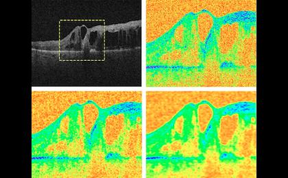 Complex diffusion in image denoising